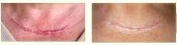 littekens voor en na